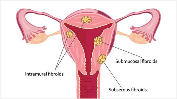 Uteral Fibroids - types, causes, symptoms and treatment