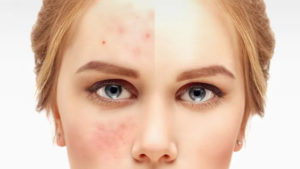 Less Acne With Keto Diet